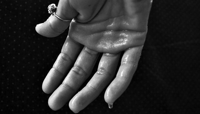 Nadpotliwość – przyczyny i leczenie nadmiernego pocenia